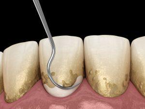 dallas periodontal health